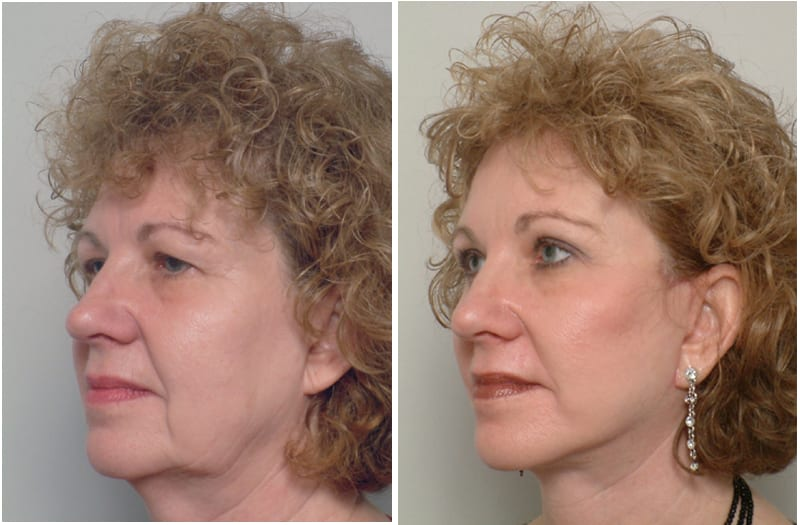 , Hyperpigmentation Correction